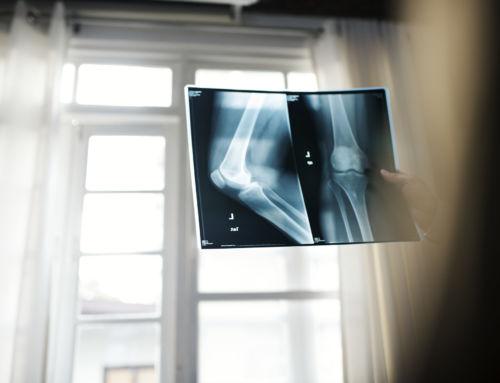 Osteoporose» was steckt konkret hinter dem Knochenschwund?
